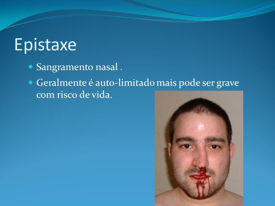 Epistaxe Sangramento nasal .