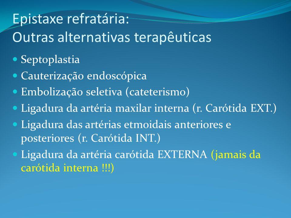 Epistaxe refratária: Outras alternativas terapêuticas