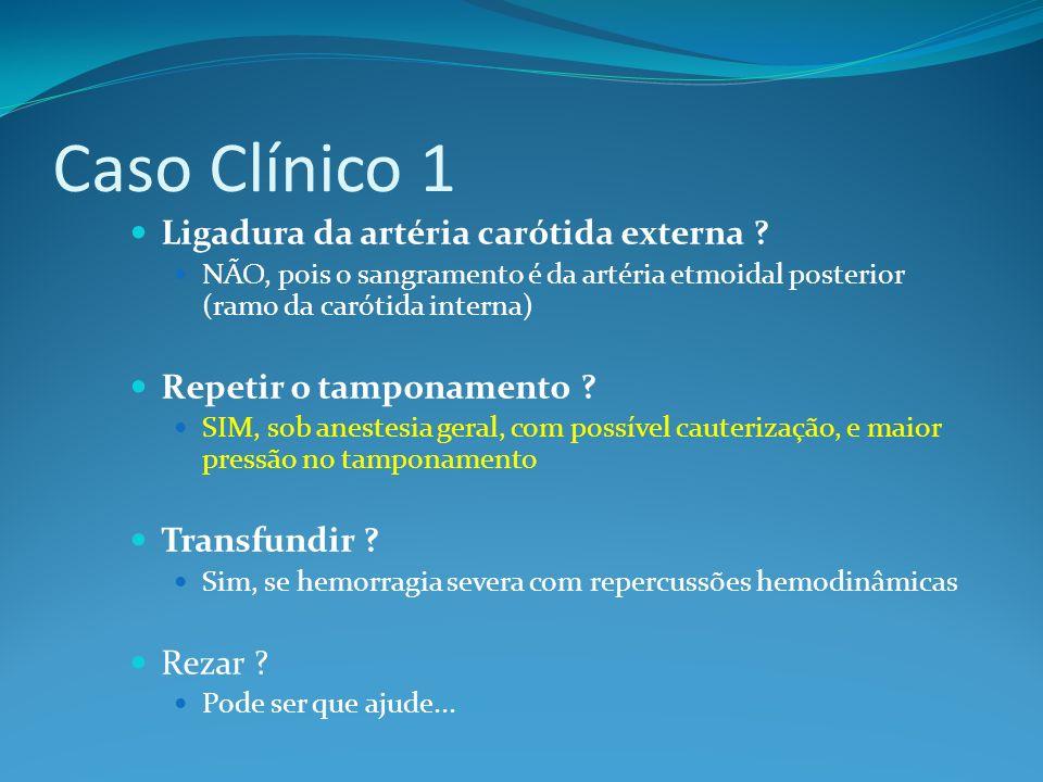 Caso Clínico 1 Ligadura da artéria carótida externa