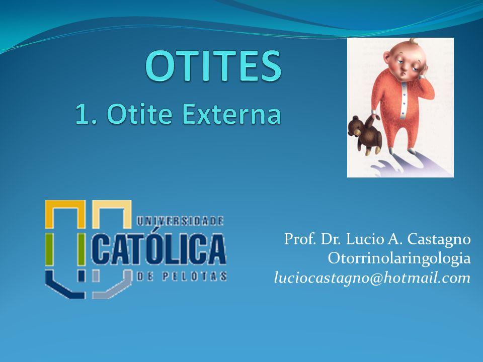 OTITES 1. Otite Externa Prof. Dr. Lucio A. Castagno