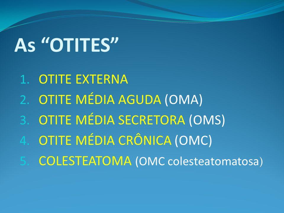 As OTITES OTITE EXTERNA OTITE MÉDIA AGUDA (OMA)