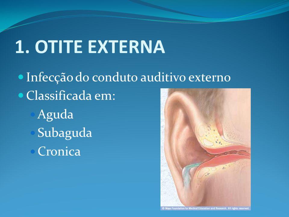 1. OTITE EXTERNA Infecção do conduto auditivo externo Classificada em: