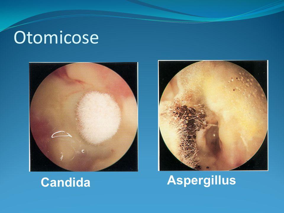 Otomicose Aspergillus Candida