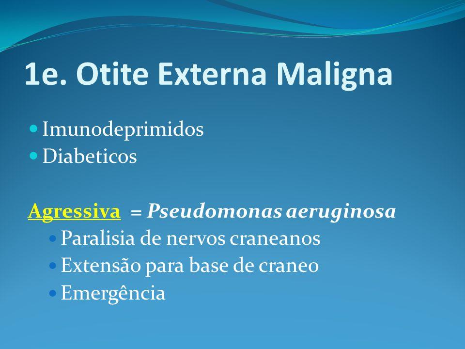 1e. Otite Externa Maligna