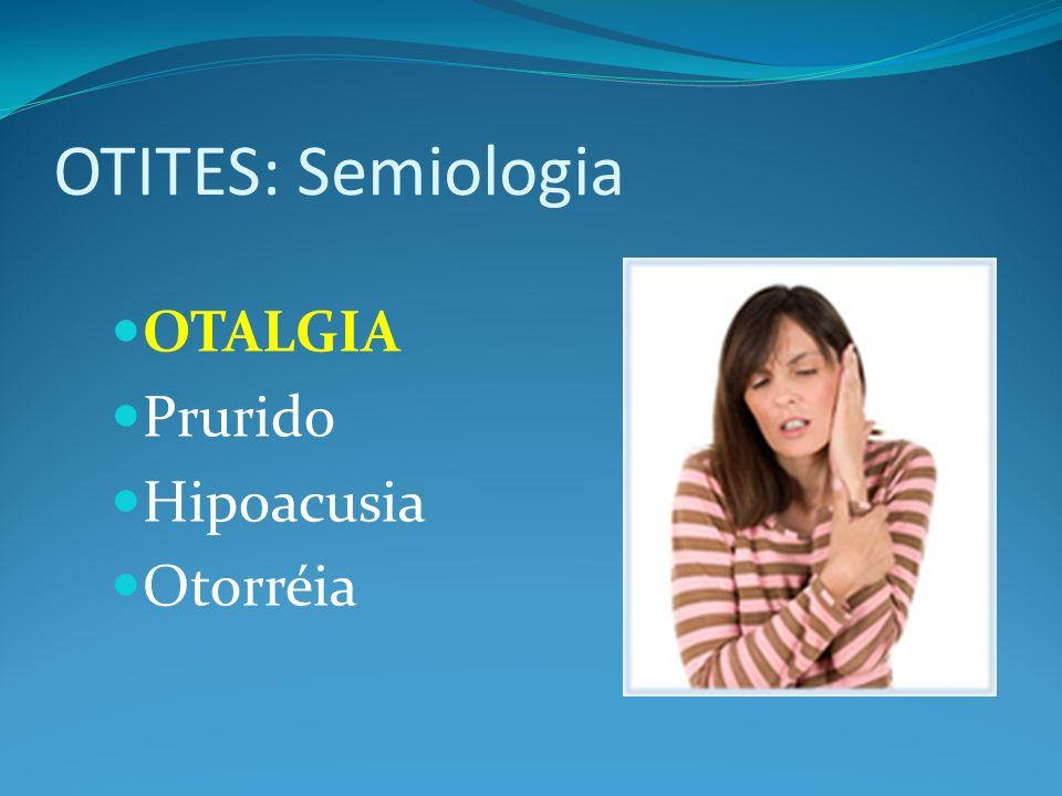 OTITES: Semiologia OTALGIA Prurido Hipoacusia Otorréia