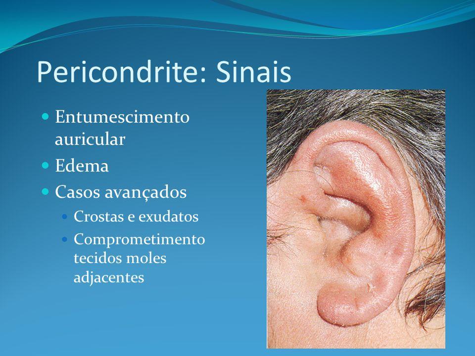 Pericondrite: Sinais Entumescimento auricular Edema Casos avançados