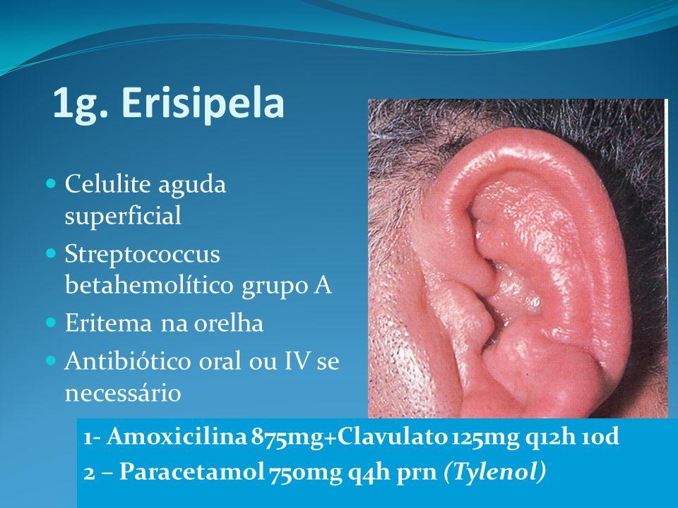 1g. Erisipela Celulite aguda superficial