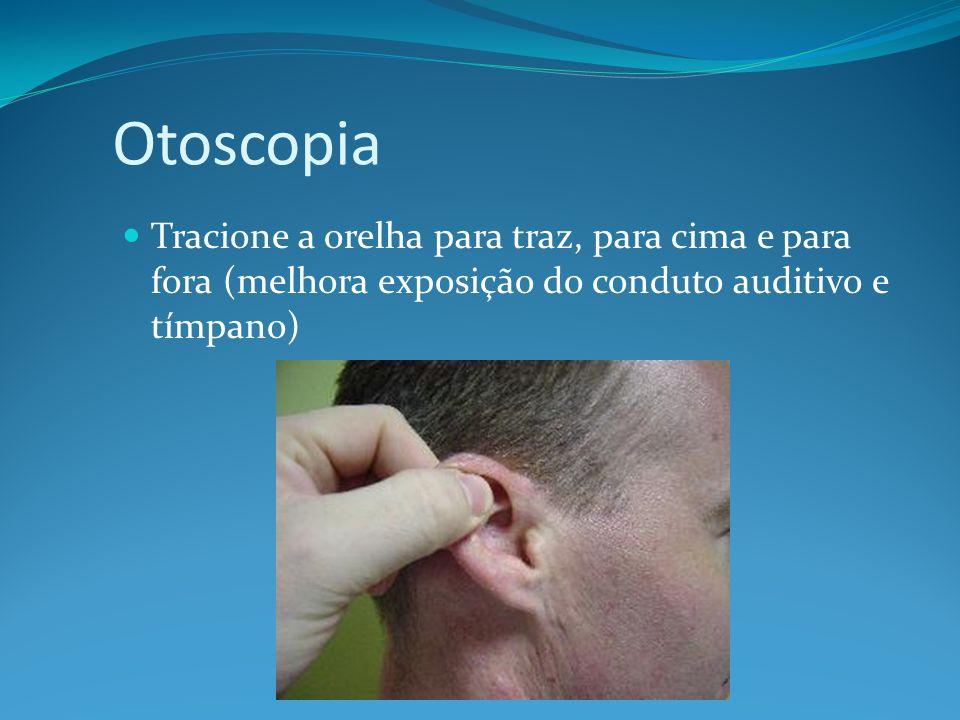 OtoscopiaTracione a orelha para traz, para cima e para fora (melhora exposição do conduto auditivo e tímpano)