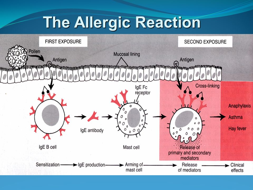 The Allergic Reaction