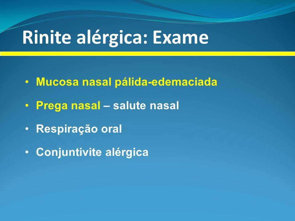 Rinite alérgica: Exame