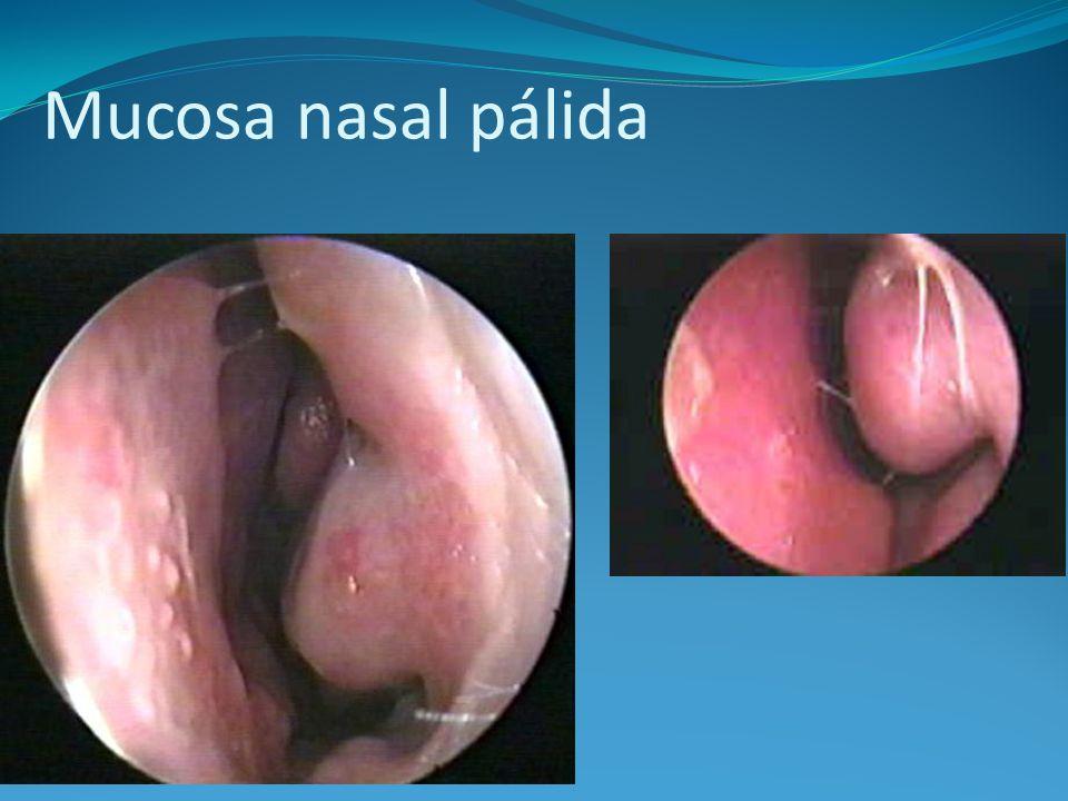 Mucosa nasal pálida