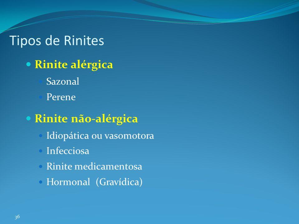 Tipos de Rinites Rinite alérgica Rinite não-alérgica Sazonal Perene
