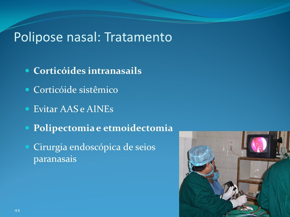 Polipose nasal: Tratamento