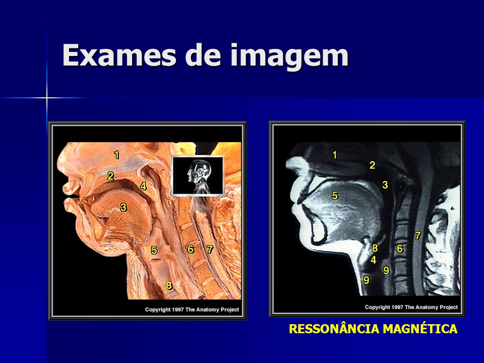 Exames de imagem RESSONÂNCIA MAGNÉTICA Nasal cavity Hard palate Tongue