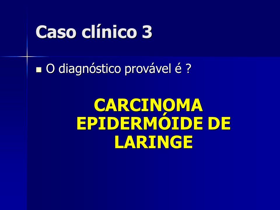 CARCINOMA EPIDERMÓIDE DE LARINGE