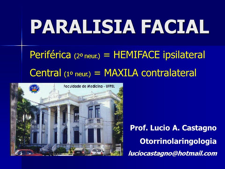 PARALISIA FACIAL Periférica (2º neur.) = HEMIFACE ipsilateral