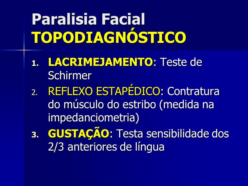 Paralisia Facial TOPODIAGNÓSTICO