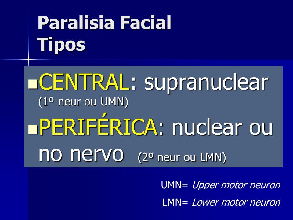 Paralisia Facial Tipos