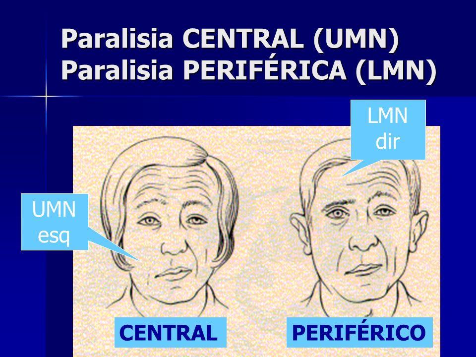 Paralisia CENTRAL (UMN) Paralisia PERIFÉRICA (LMN)