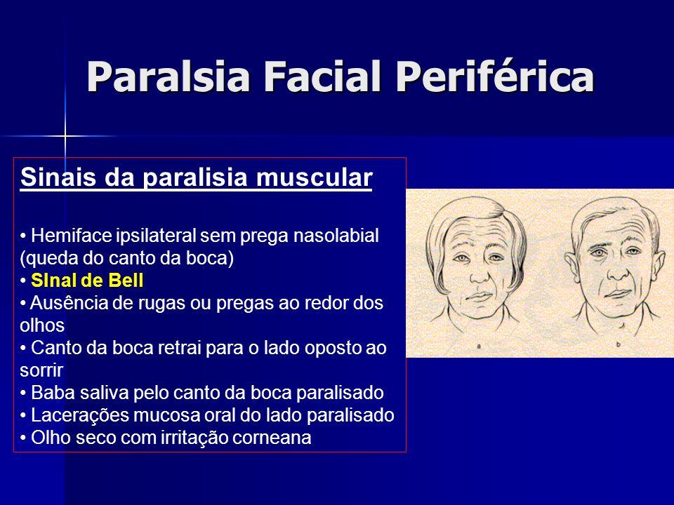 Paralsia Facial Periférica