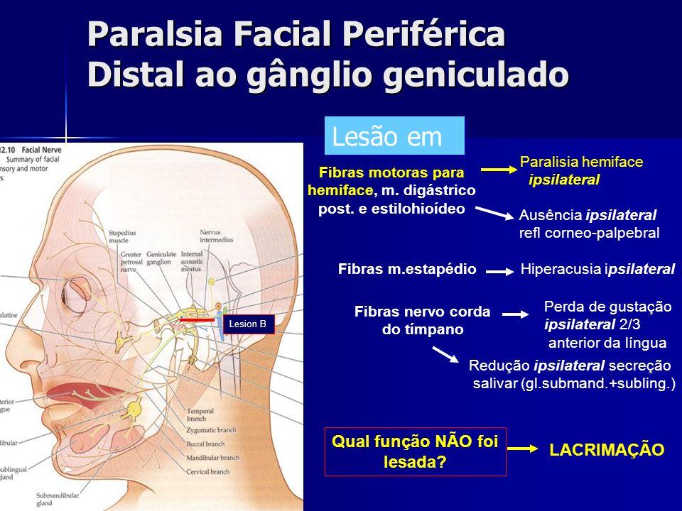 Paralsia Facial Periférica Distal ao gânglio geniculado