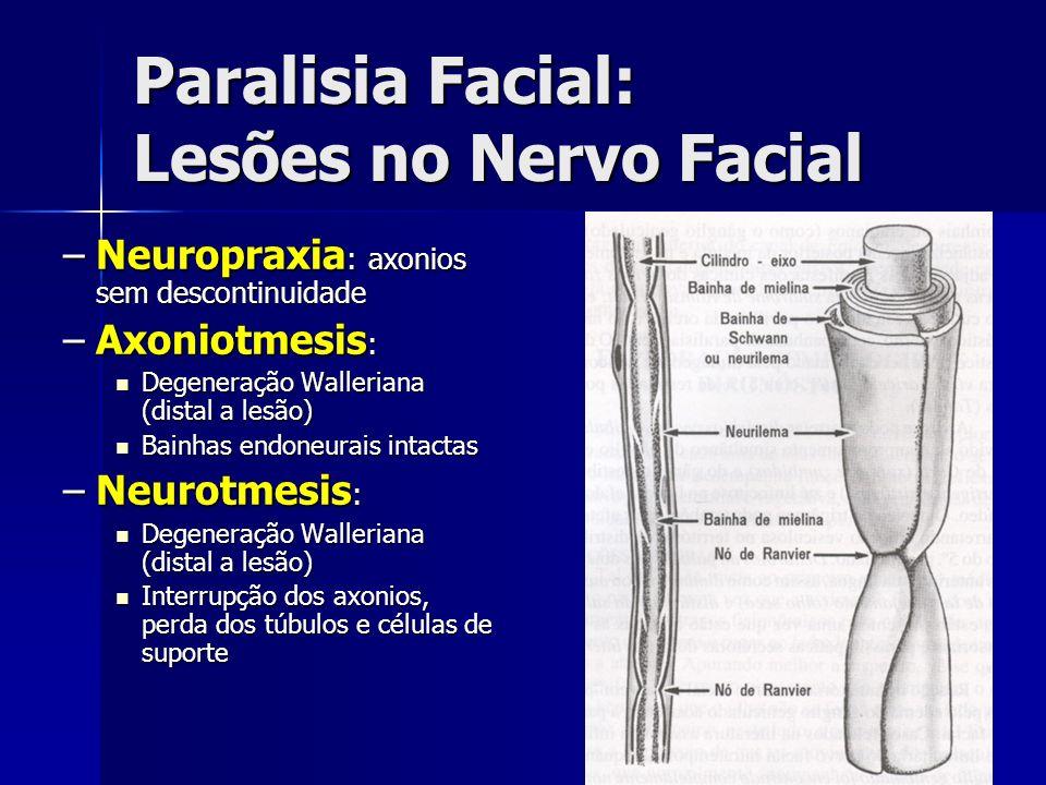 Paralisia Facial: Lesões no Nervo Facial