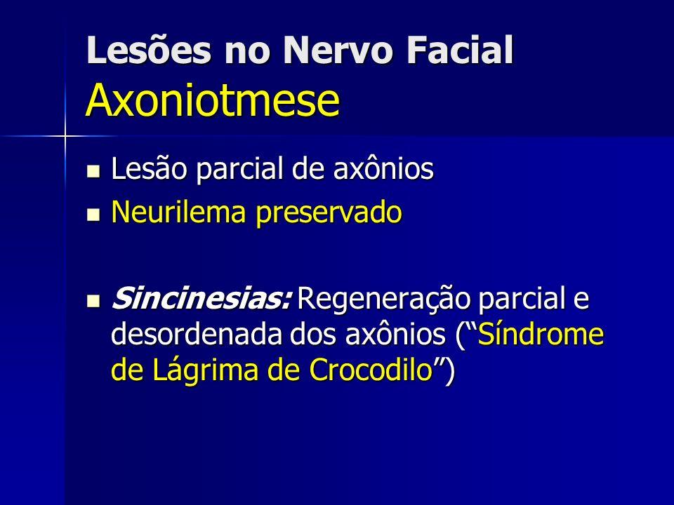 Lesões no Nervo Facial Axoniotmese