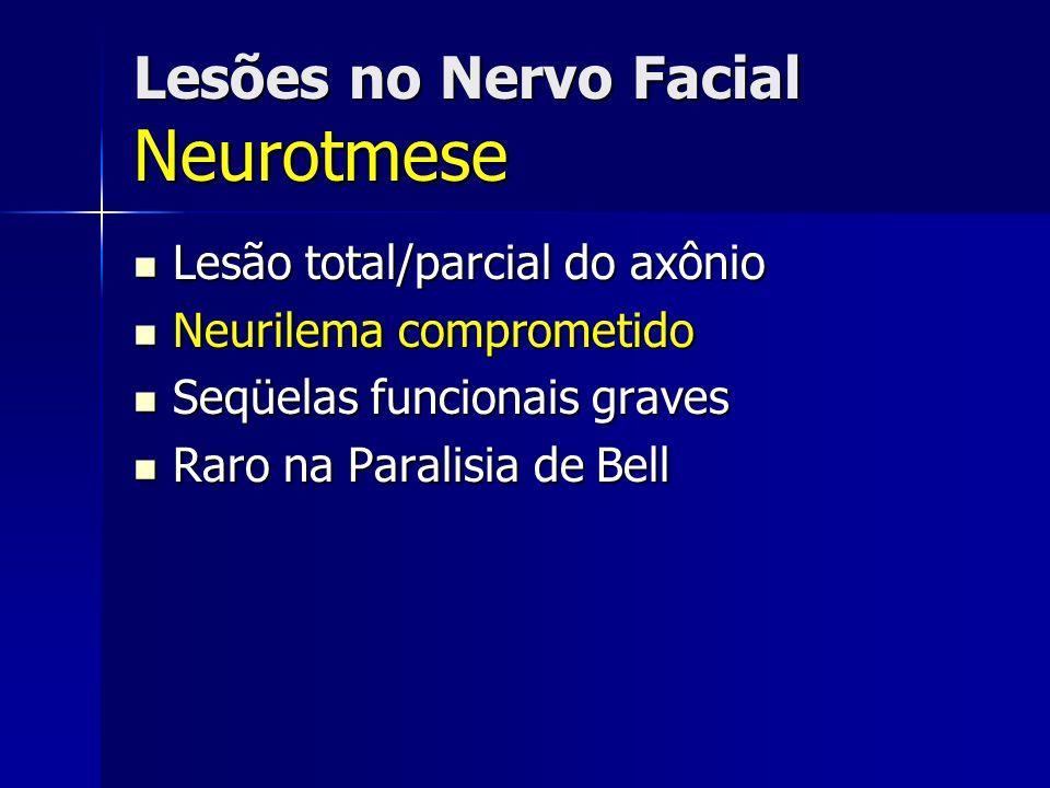 Lesões no Nervo Facial Neurotmese