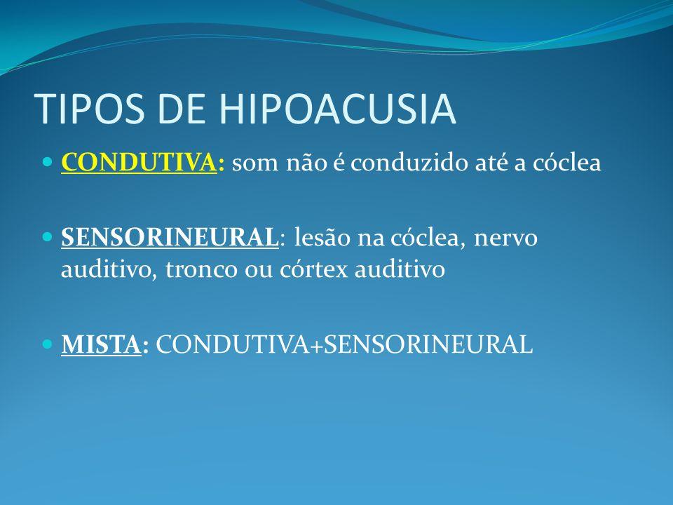 TIPOS DE HIPOACUSIA CONDUTIVA: som não é conduzido até a cóclea