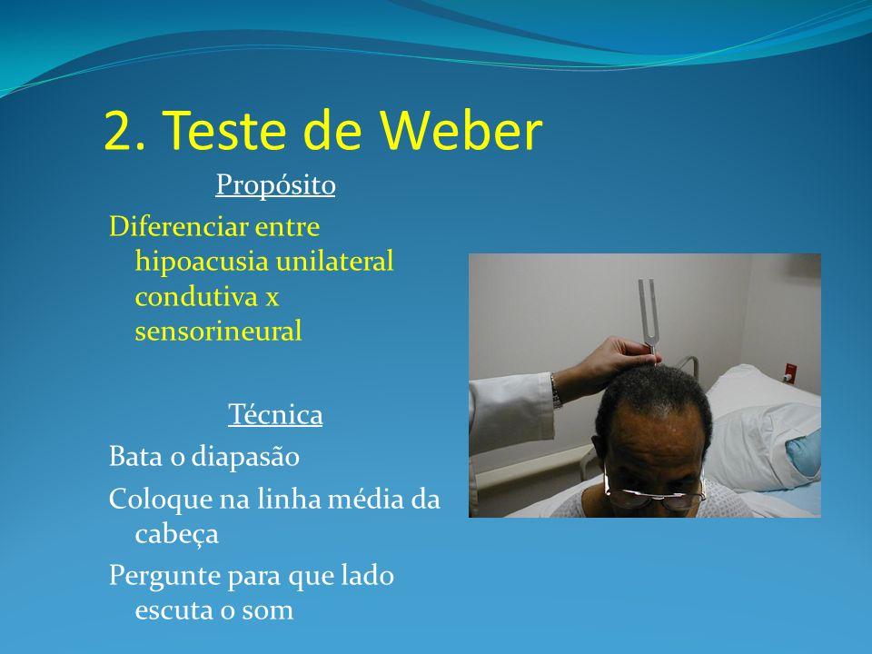 2. Teste de Weber Propósito