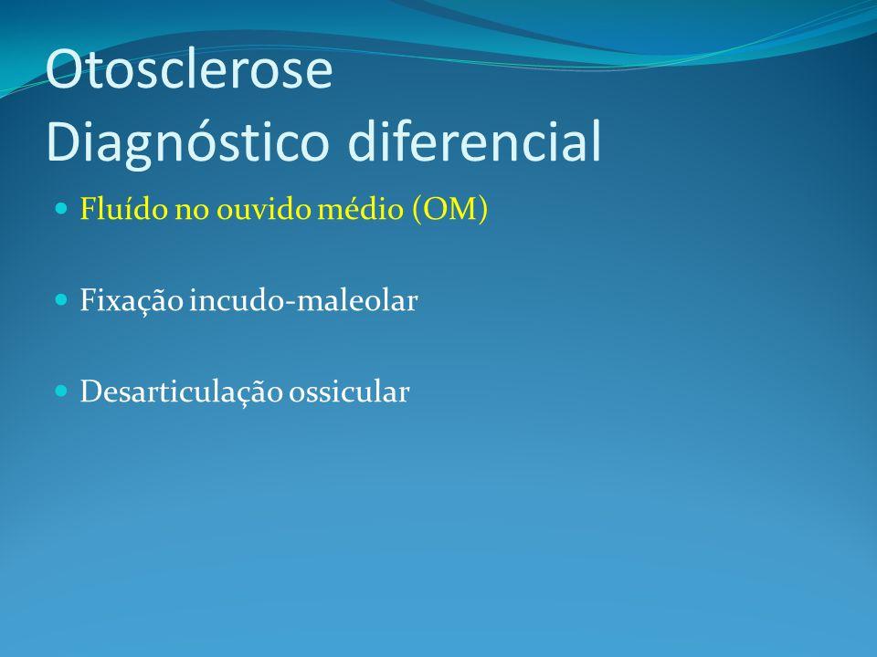 Otosclerose Diagnóstico diferencial