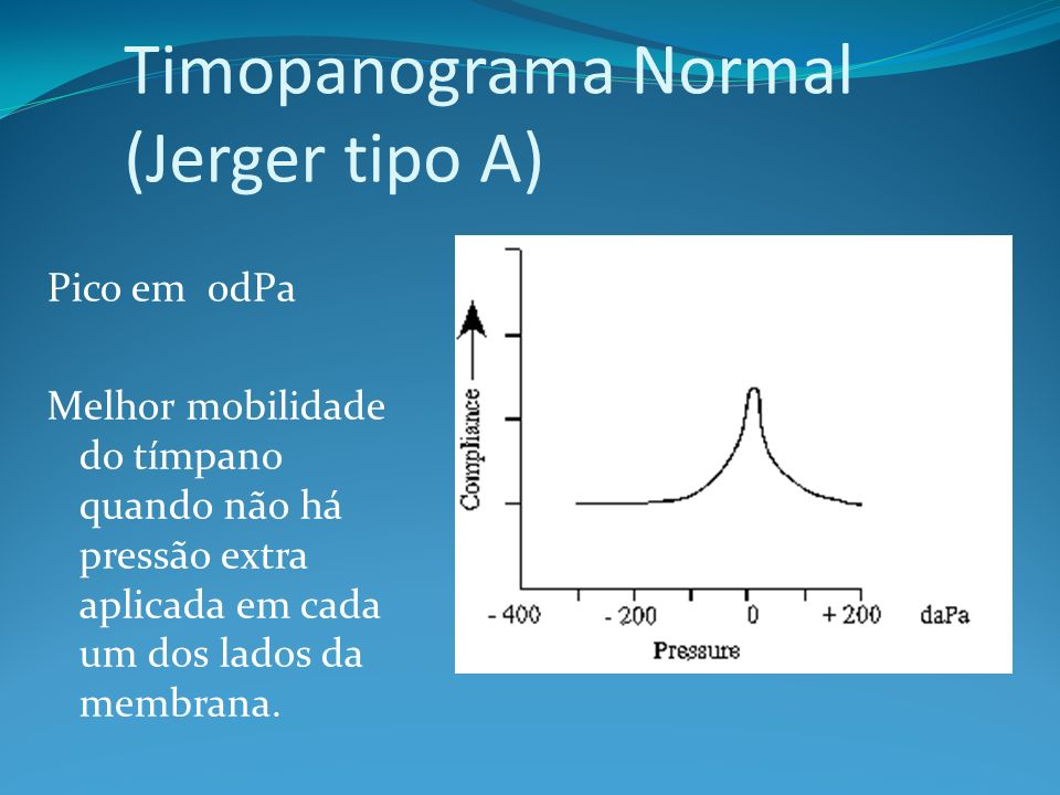 Timopanograma Normal (Jerger tipo A)