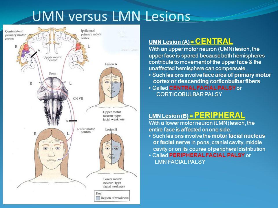 UMN versus LMN Lesions UMN Lesion (A) = CENTRAL