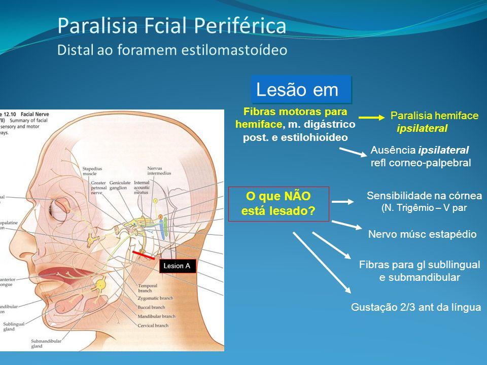 Paralisia Fcial Periférica Distal ao foramem estilomastoídeo