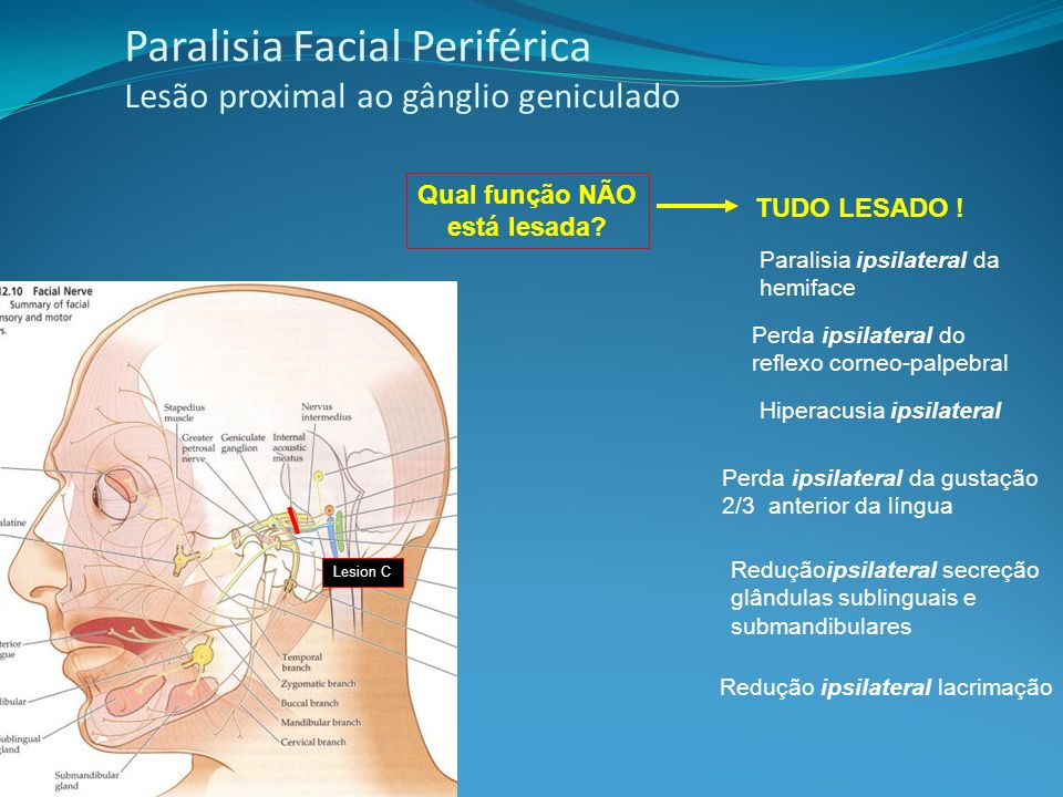 Paralisia Facial Periférica Lesão proximal ao gânglio geniculado