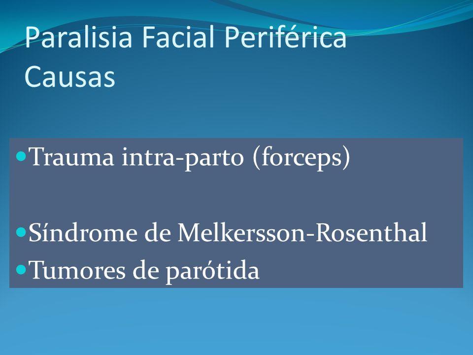 Paralisia Facial Periférica Causas