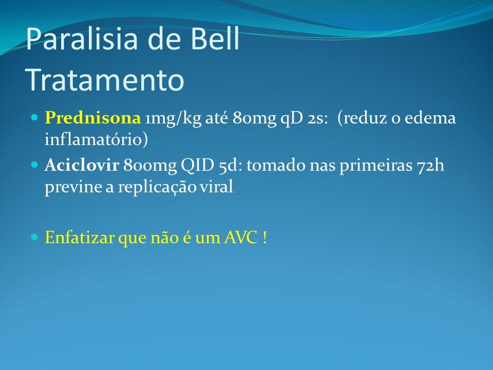 Paralisia de Bell Tratamento
