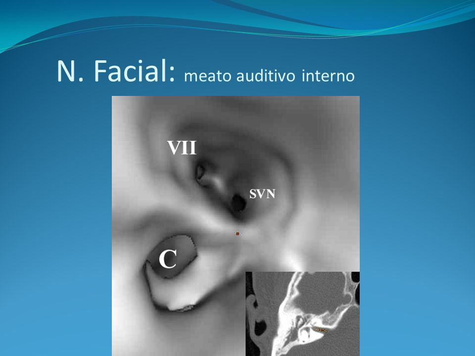 N. Facial: meato auditivo interno