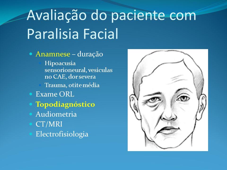 Avaliação do paciente com Paralisia Facial