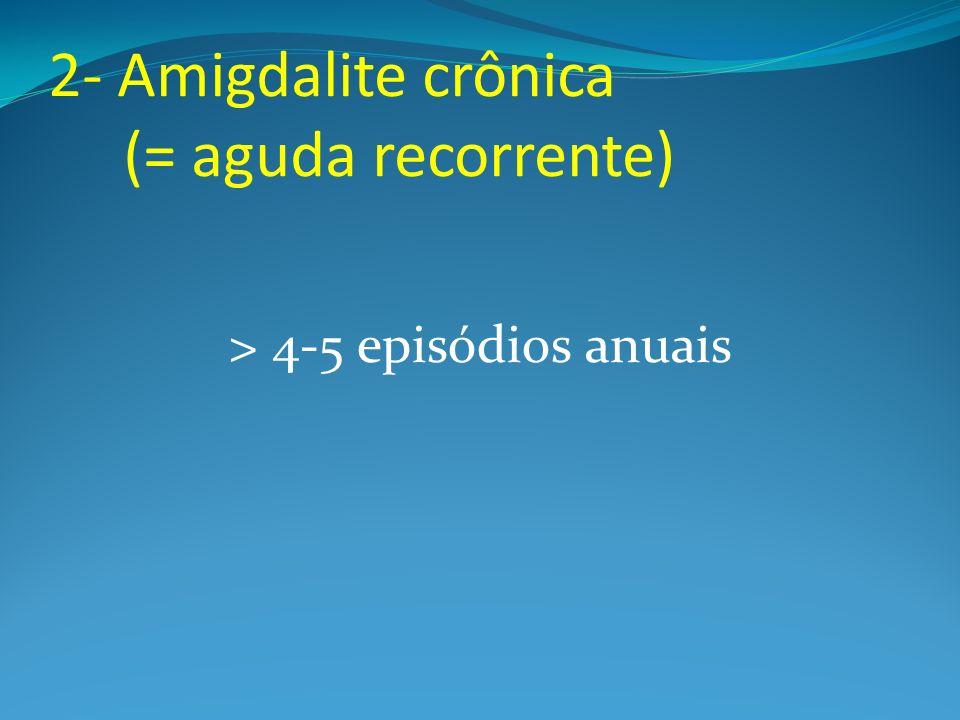 2- Amigdalite crônica (= aguda recorrente)