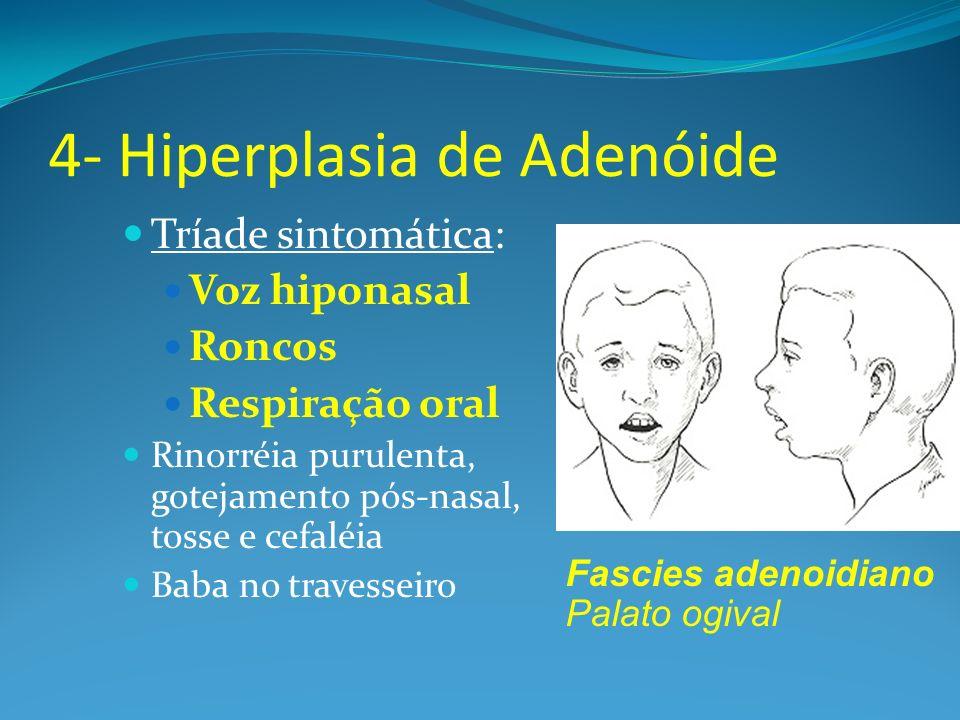 4- Hiperplasia de Adenóide