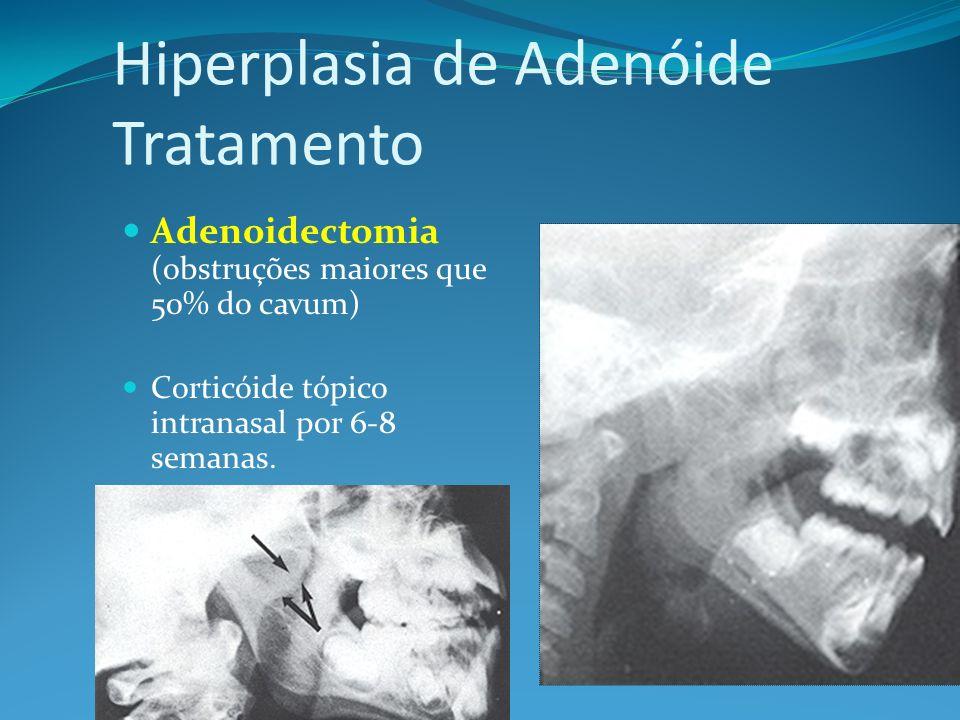 Hiperplasia de Adenóide Tratamento
