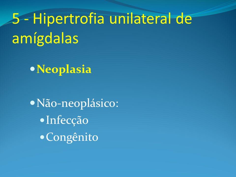 5 - Hipertrofia unilateral de amígdalas