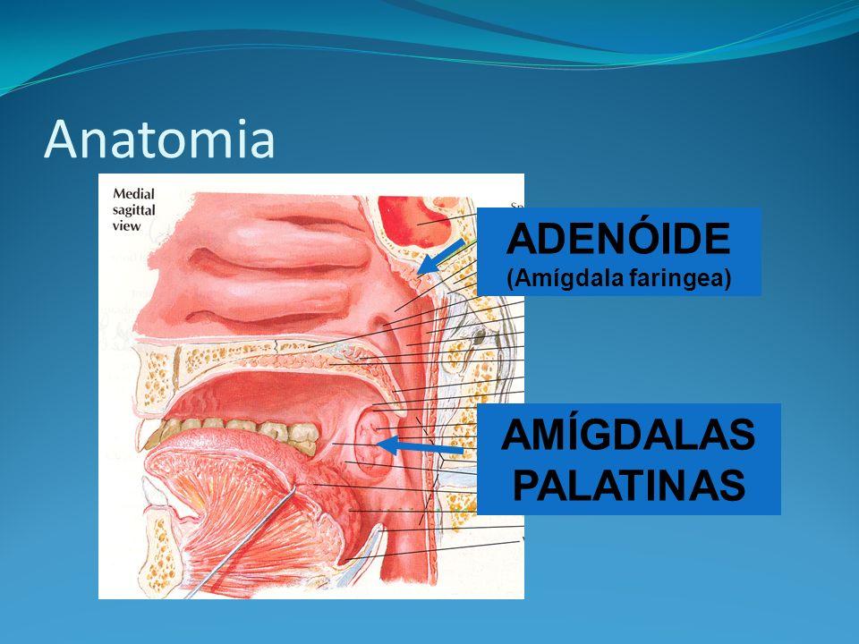 ADENÓIDE (Amígdala faringea)