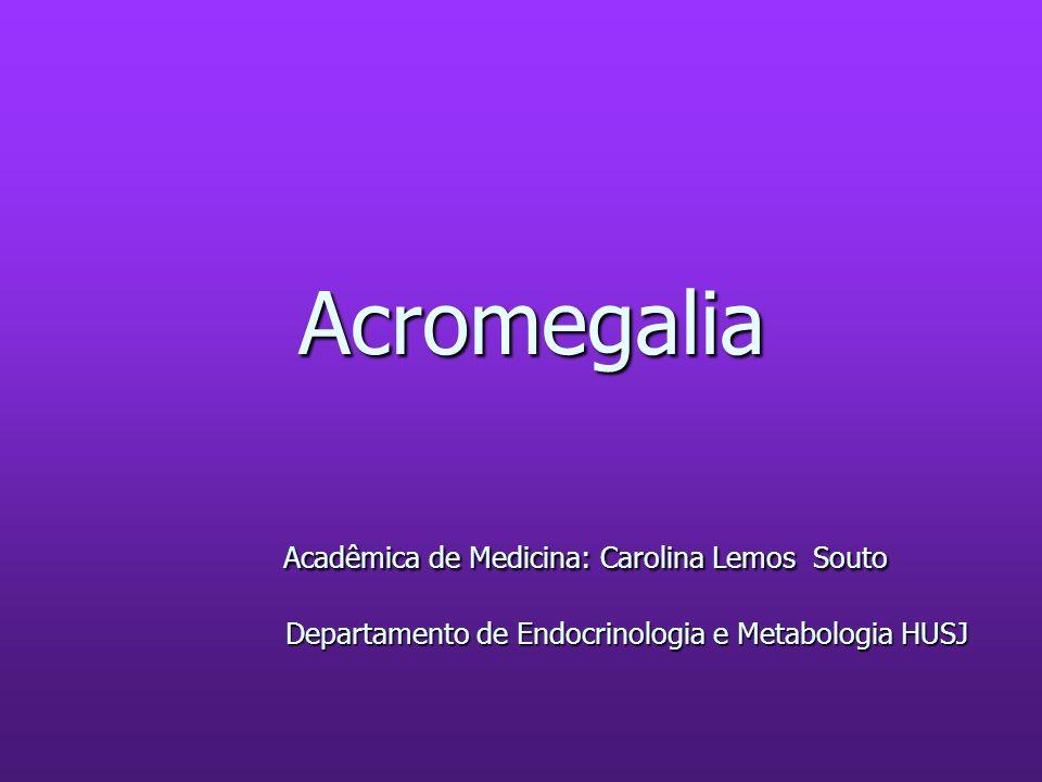 Acromegalia Acadêmica de Medicina: Carolina Lemos Souto Departamento de Endocrinologia e Metabologia HUSJ