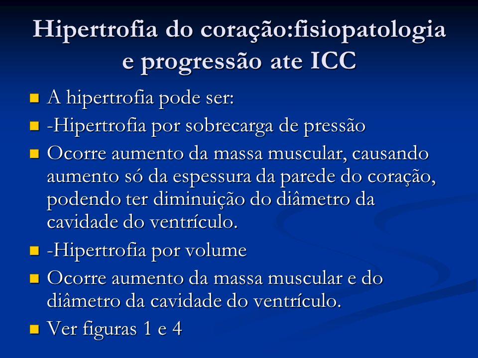 Hipertrofia do coração:fisiopatologia e progressão ate ICC