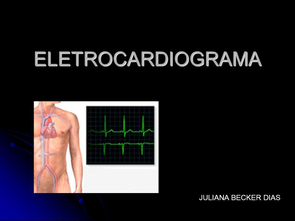 ELETROCARDIOGRAMA JULIANA BECKER DIAS