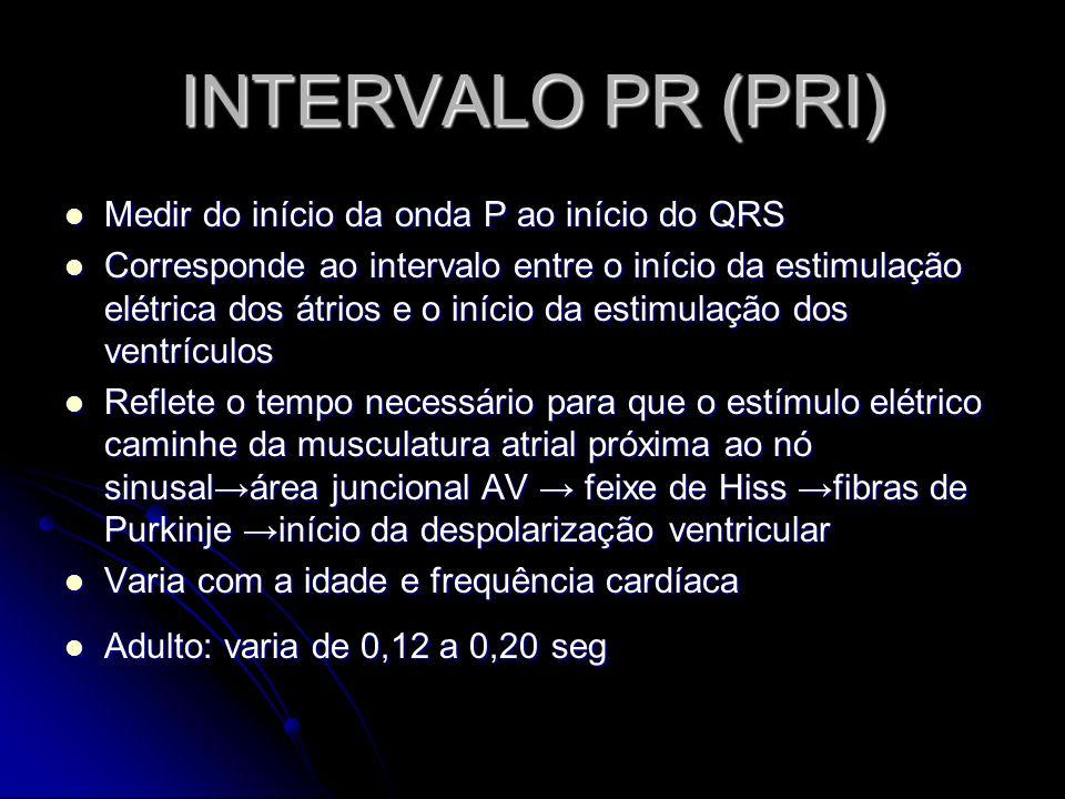 INTERVALO PR (PRI) Medir do início da onda P ao início do QRS