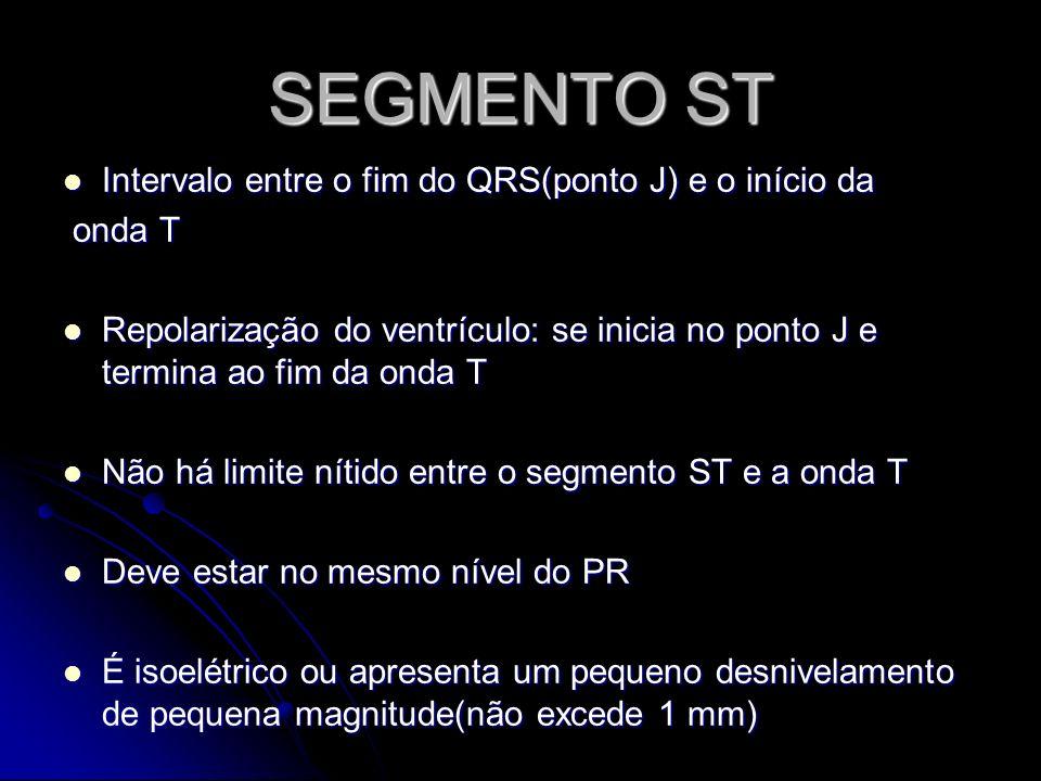 SEGMENTO ST Intervalo entre o fim do QRS(ponto J) e o início da onda T