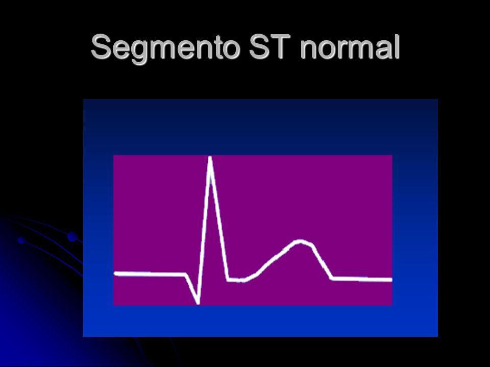 Segmento ST normal